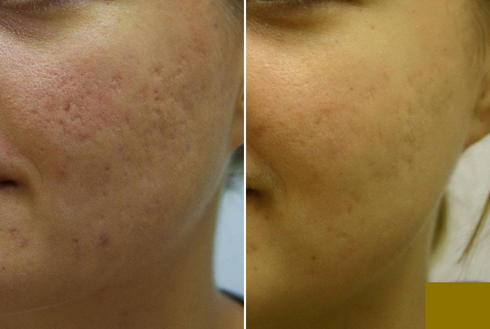 Ožiljci od akni prije i nakon tretmana