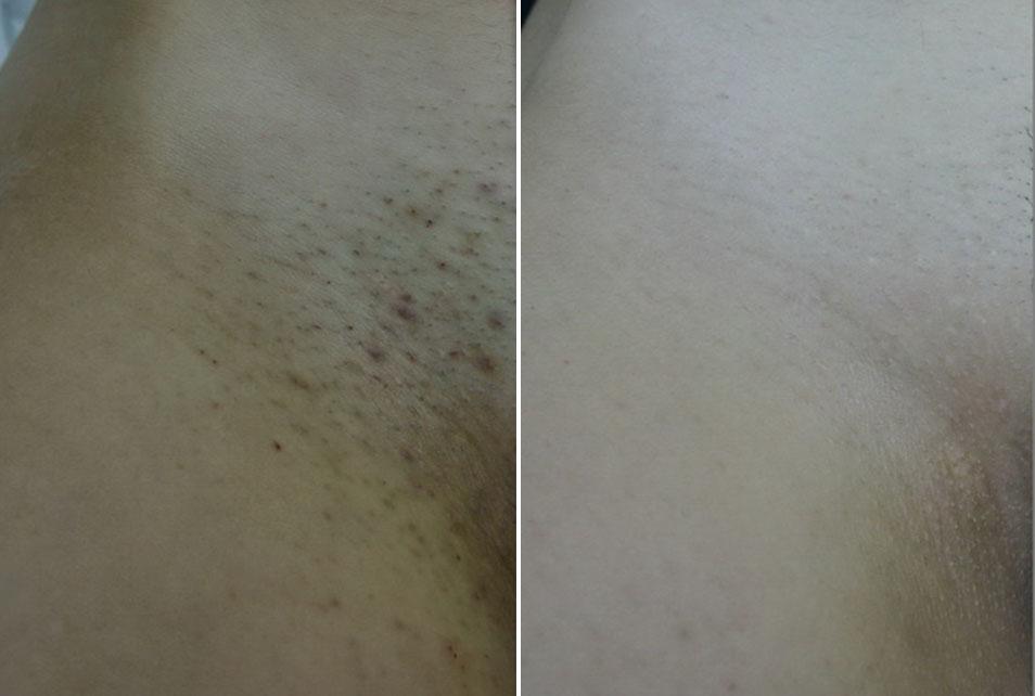 Bikini prije i nakon tretmana