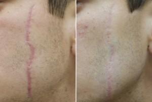 Ožiljak prije- poslje