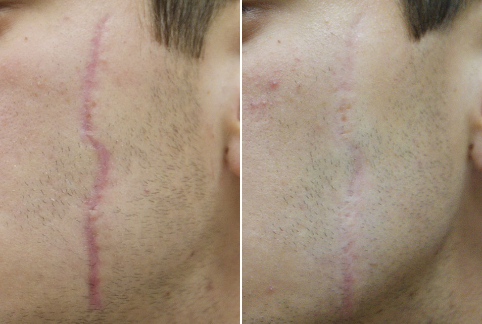 Ožiljak prije i nakon tretmana