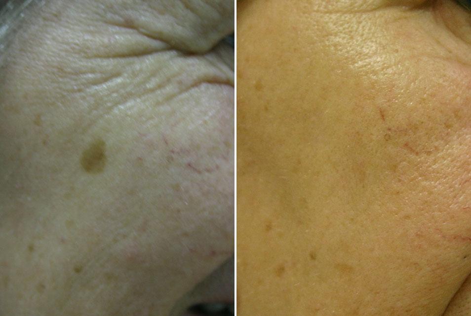 Pigmentacija prije i nakon tretmana