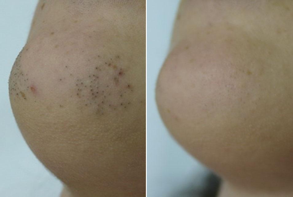 Vrat i brada prije i nakon tretmana