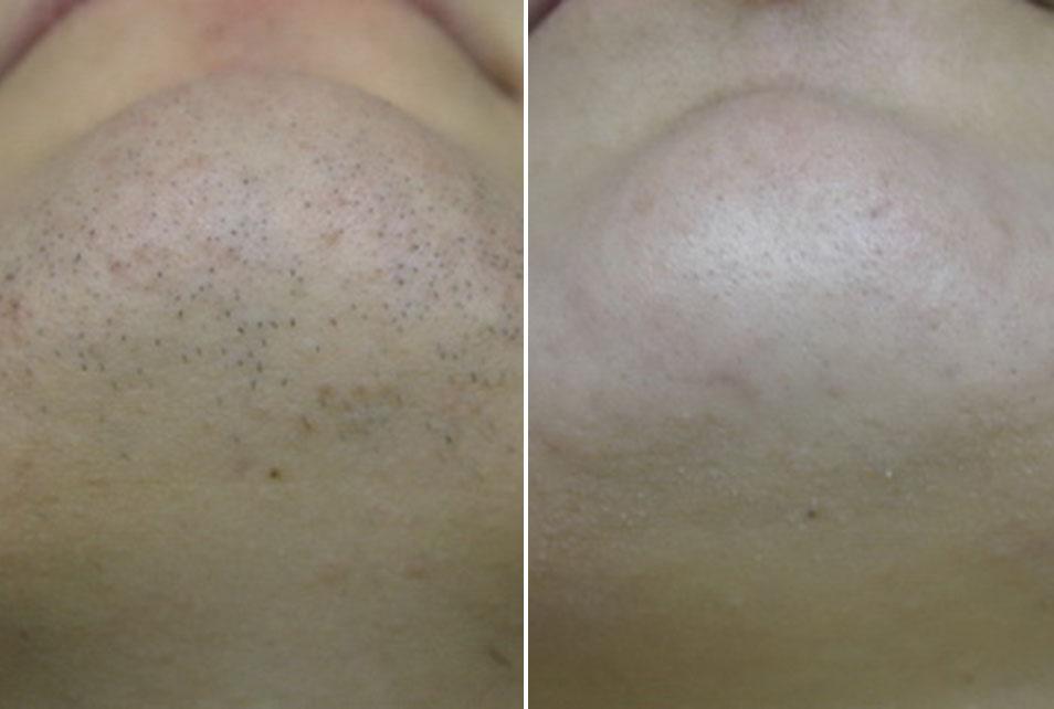 Vrat i brada kod hormonalnog poremećaja prije i nakon tretmana