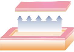 ablativni laser