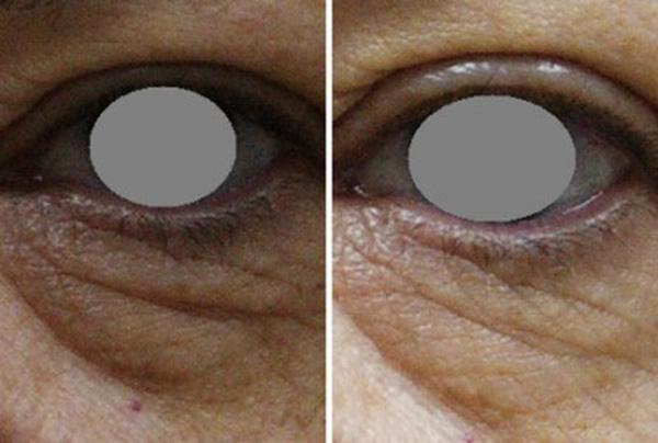 Pomlađivanje oko očiju prije i nakon tretmana