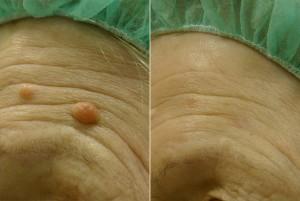 Madež prije tretmana i dva mjeseca nakon tretmana